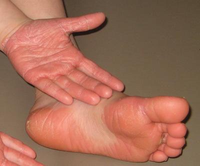 Mostrar la psoriasis en las manos