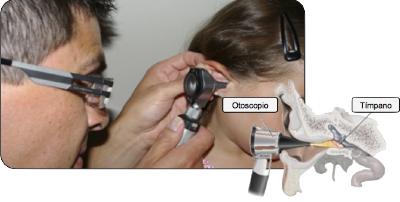 Sintomas tapones de cera en los oidos